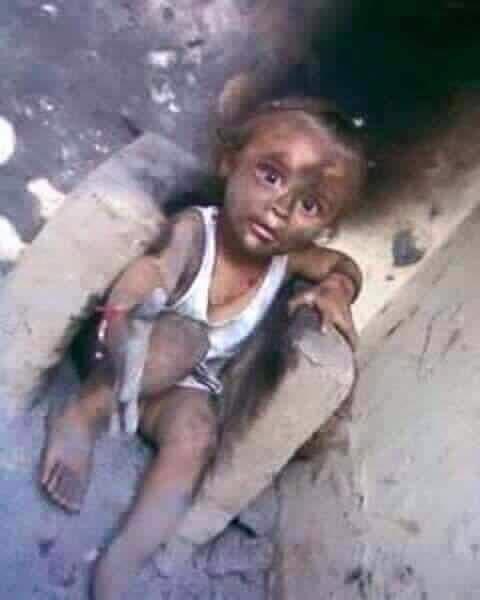 التحالف الدولي:يصف استمراراستهداف المدنيين وأغلاق مطار صنعاء عارفي جبين الأمم المتحدة