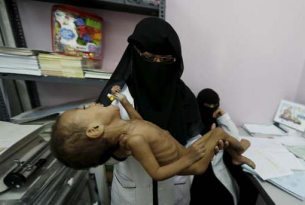 تواطئ دولي بالعقاب الجماعي المفروض من السعودية والأمارات على المدنيين باليمن والذي يشكل جريمة حرب ضد الإنسانية